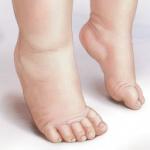 Toe Walking Children's Feet