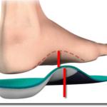 Orthotic Insert Diagram